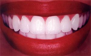 красивые зубы гомель